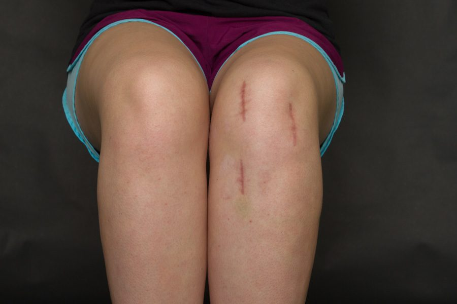 Anderson displays the surgical scars on her knee. After being kicked during a soccer game, Anderson had reconstructive surgery, and may not be able to play soccer again.